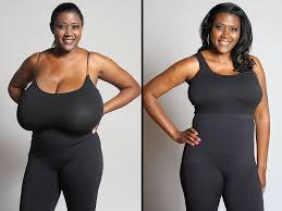 size g breast pictures woman whose bra size was 36n gets a life changing breast reduction