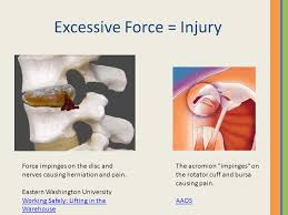 compression force injury. excessive force \u003d injury compression