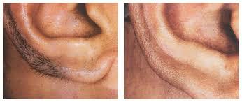laser hair removal men face best in delhi