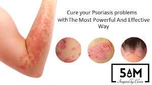 Psoriasis Light Therapy Psoriasis On Hands Pinterest Psoriasis