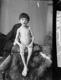 starving white child. Simple White FileA Starving Child NLW3362487jpg Inside Starving White Child I