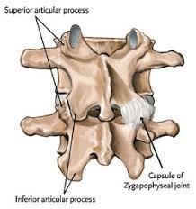 Whats A Facet What Can Be Done To Relieve Facet Joint Hypertrophy And Pain In My
