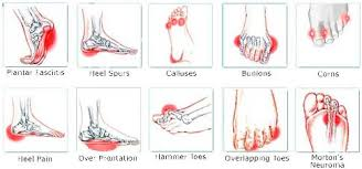 Do You Suffer From Pain In Your Foot Arch Put Your Feet In