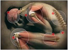 Resultado de imagen para dolor de huesos