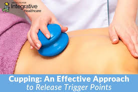 Cupping An Effective Approach To Release Trigger Points