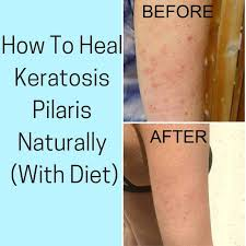 how to heal keratosis pilaris with t