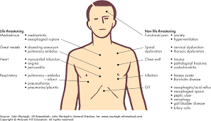 sharp pain in chest. image not available. sharp pain in chest