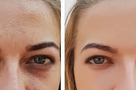 belotero for under eye dark circles