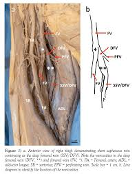 Varicosities Affecting The Lower Limb Veins Consequent To A
