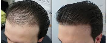 Male Pattern Baldness Cure Adorable 48 Most Effective Ways To Treat Male Pattern Baldness Health