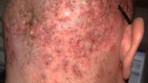 Does Tanning Help Folliculitis?