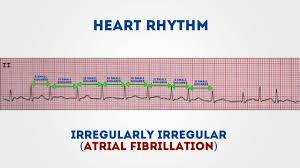 How To Read Cardiogram Chart How To Read An Ecg Ecg Interpretation Geeky Medics