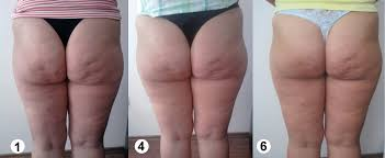 Cellulite, behandlung Infeel Fitness Spa