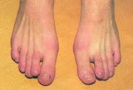 Nemoci Ohrožující Dětskou Nohu Detskaobuvcz