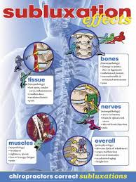 Chiropractic Subluxation Chart Subluxation Effects Poster