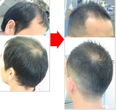 薄毛やハゲを隠したり活かしたりする髪型 Naver まとめ