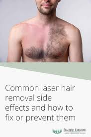 common laser hair removal side effects