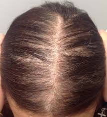 Female Pattern Hair Loss Magnificent Hair Growth Treatments Dy Dermatology
