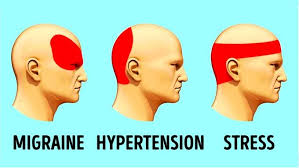 Headache Chart Template Types Of Headaches Know Your Meme