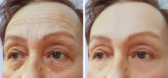 How Long Does Botox Last How Long Does Botox Last A New You Aesthetics