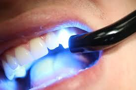Light Cure Composite Dental Composite