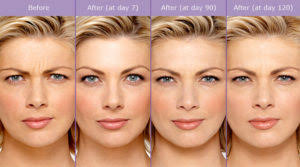 How Long Does Botox Last How Long Does Botox Last Woodlands Dermatology Spring