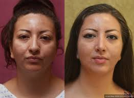 hispanic rhinoplasty before after patient 11020
