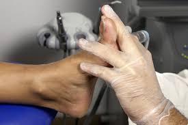 Turf toe, Hammer toe, Toe exercises