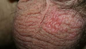 Itchy Scrotum, Red Itchy Bumps on Balls, Dry, STD Rash, Causes, at ...