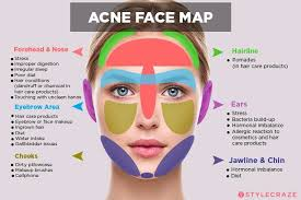 Acne Face Chart Acne Face Map What Is Your Acne Trying To Tell You Acne