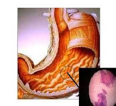 Ciri ciri penyakit maag kronis
