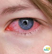 conjunctivitis is basically an inflammation in the conjunctiva the tissue that lines the inside of your eyelids and the white portion of the eye