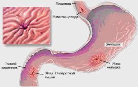 Реферат Осложнения язвенной болезни у детей на современном этапе  Осложнения язвенной болезни у детей на современном этапе Кровотечение