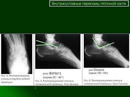КСС Травма Переломы Переломы пяточной кости Внутрисуставные  Доклад был представлен на научно практической конференции с международным участием Малоинвазивные технологии в травматологии и ортопедии Киев