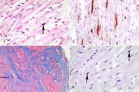 Our cases suggest that the myocarditis may be more accurately described as lymphohistiocytic myocarditis, and our cases were also devoid of giant cells. Https Journals Sagepub Com Doi Pdf 10 1177 0300985817725387