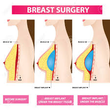 Breast Enhancement Size Chart Plastic Surgery Of Breast Implant Before And After Vector Illustration
