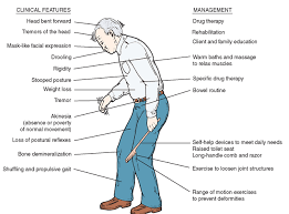 Stages Of Dementia Chart Dementias And Related Disorders Gerontological Nursing Part 2