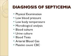 Image result for septicemia
