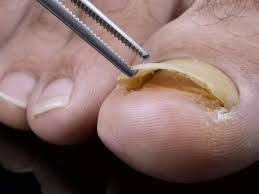 how to manage a detached toenail what causes a toenail to fall off and what do you do when this happens we look at causes recovery time removing the
