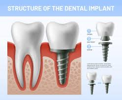 There are also limits on root canal retreatment (may be excluded), as well as crown replacement (may only be allowed root canal is not covered under root canal. Root Canal Retreatment Vs A Dental Implant Which Option Is Best