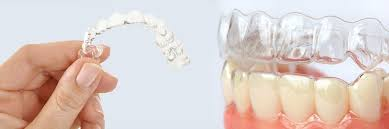 Alternative to braces invisalign teen