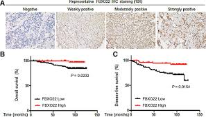 The Confluence Learning Pattern Is Associated With Unique FBXO48 Possesses Both Protumorigenic And Antimetastatic Roles In