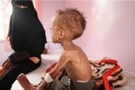 Image result for روزی 130 کودک یمنی از گرسنگی و بیماری میمیرند