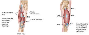 Muscle Pressure Points Chart Positive Health Online Article Treating Trigger Points