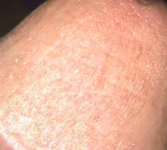 Rash on Penile Head: Shaft, Itchy, Yeast Infection, Causes, Symptoms ...
