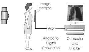 Digital Radiography Schematic Diagram Of A Digital Radiography System