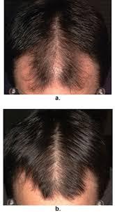 male androgenetic alopecia endotext
