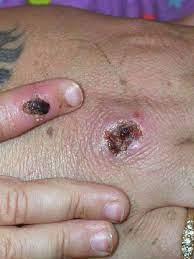 possible monkeypox exposure ...