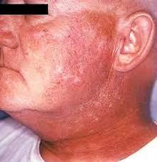radiation dermais symptoms