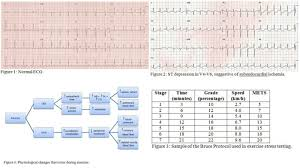 Exercise Stress Test Mets Chart Figure Stress Testing Ecg And Charts Contributed By